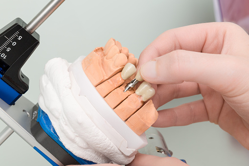 Technician working on dental implant